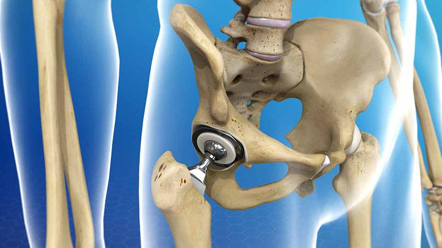 جراحی تعویض مفصل ران