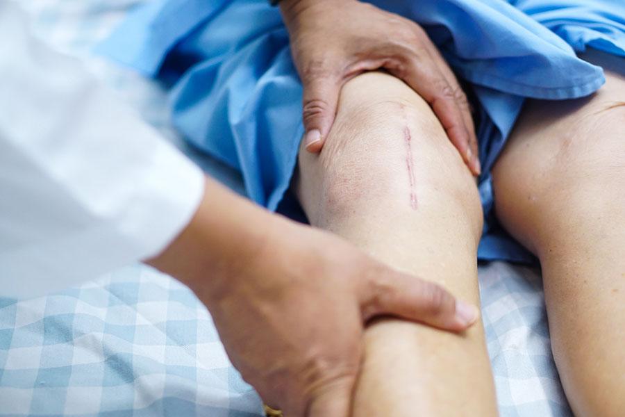 ویژگی های بهترین جراح تعویض مفصل زانو