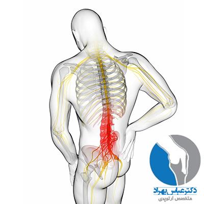 علت و درمان درد سیاتیک