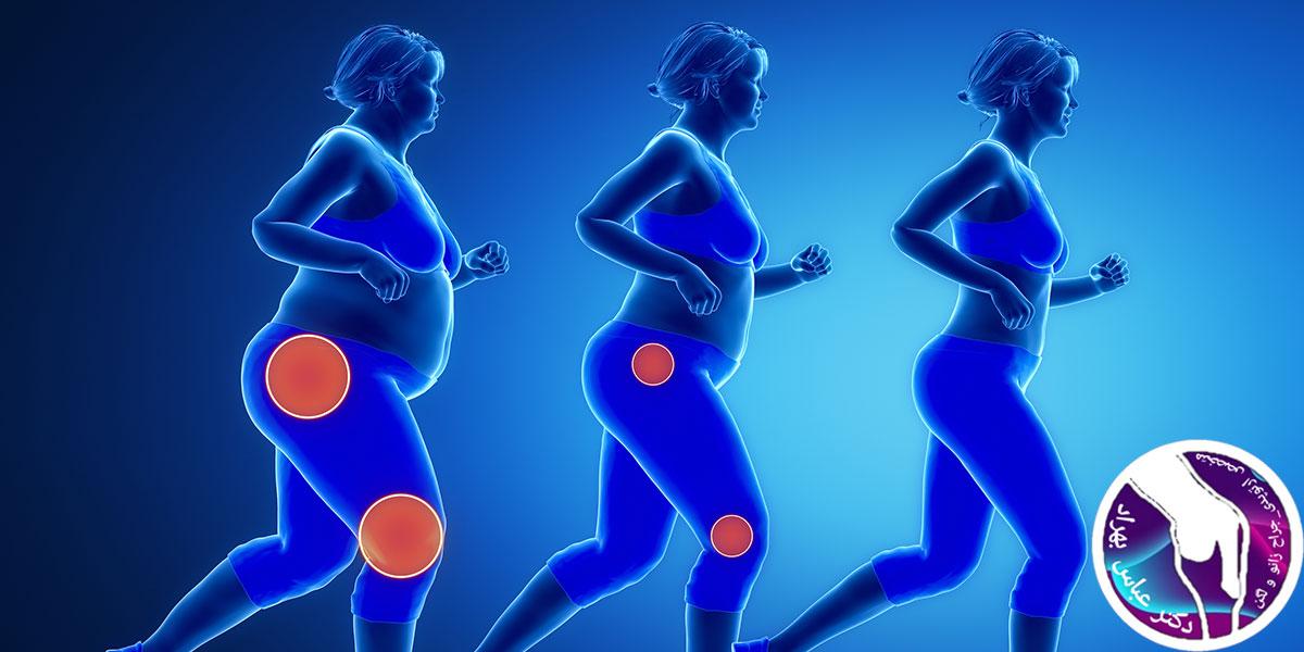 کاهش درد مفاصل با تغییر سبک زندگی
