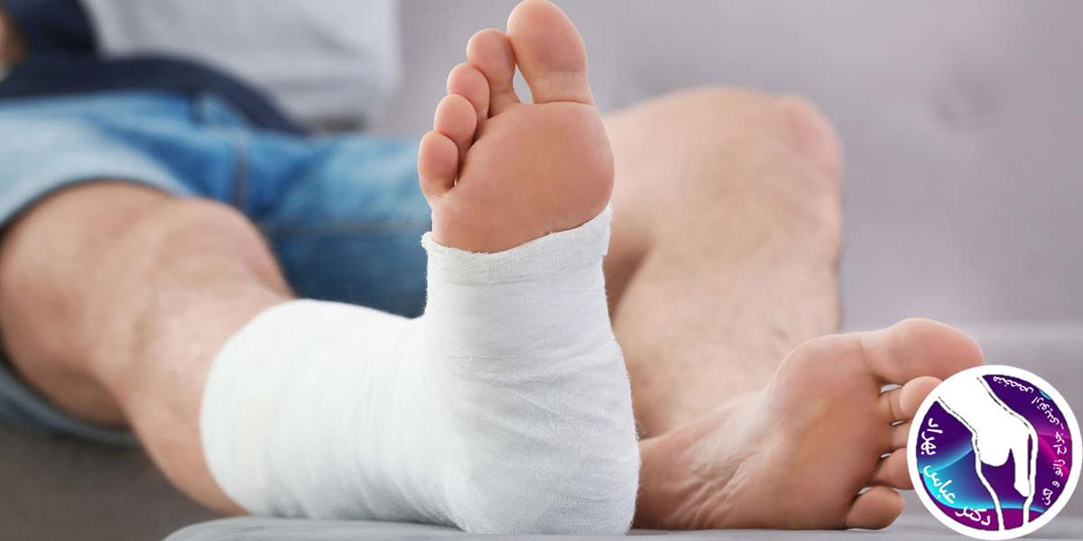 چه کسانی کاندید انجام آرتروپلاستی کامل مچ پا هستند