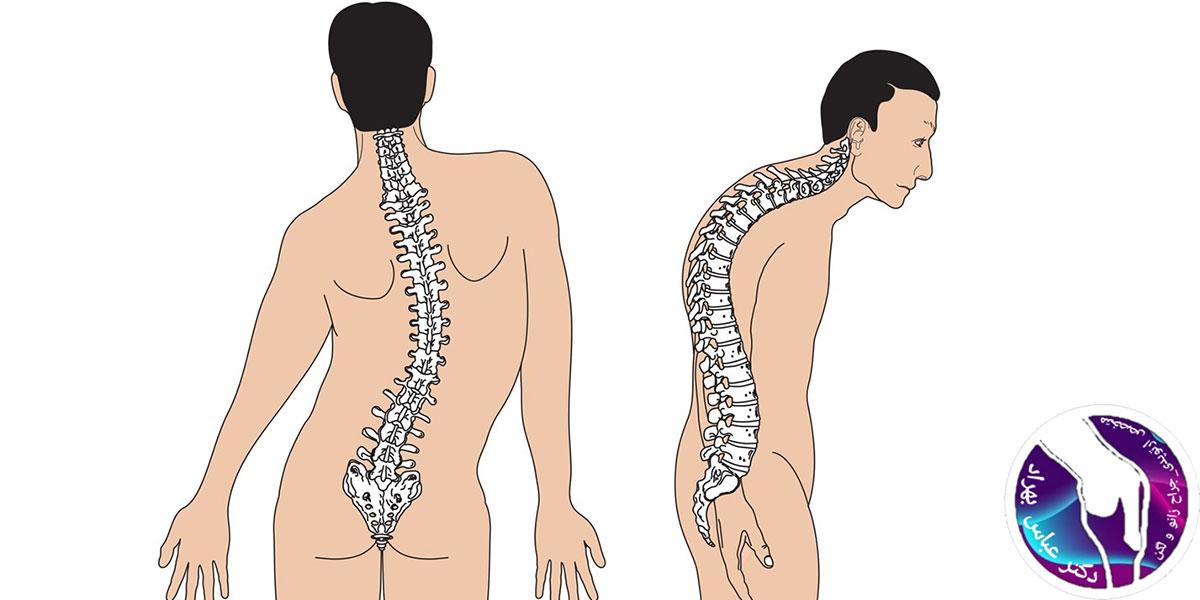 بیماری های غیر التهابی مفصلی