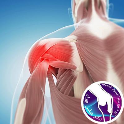 ناپایداری مفصل شانه چیست و چه علائمی دارد؟