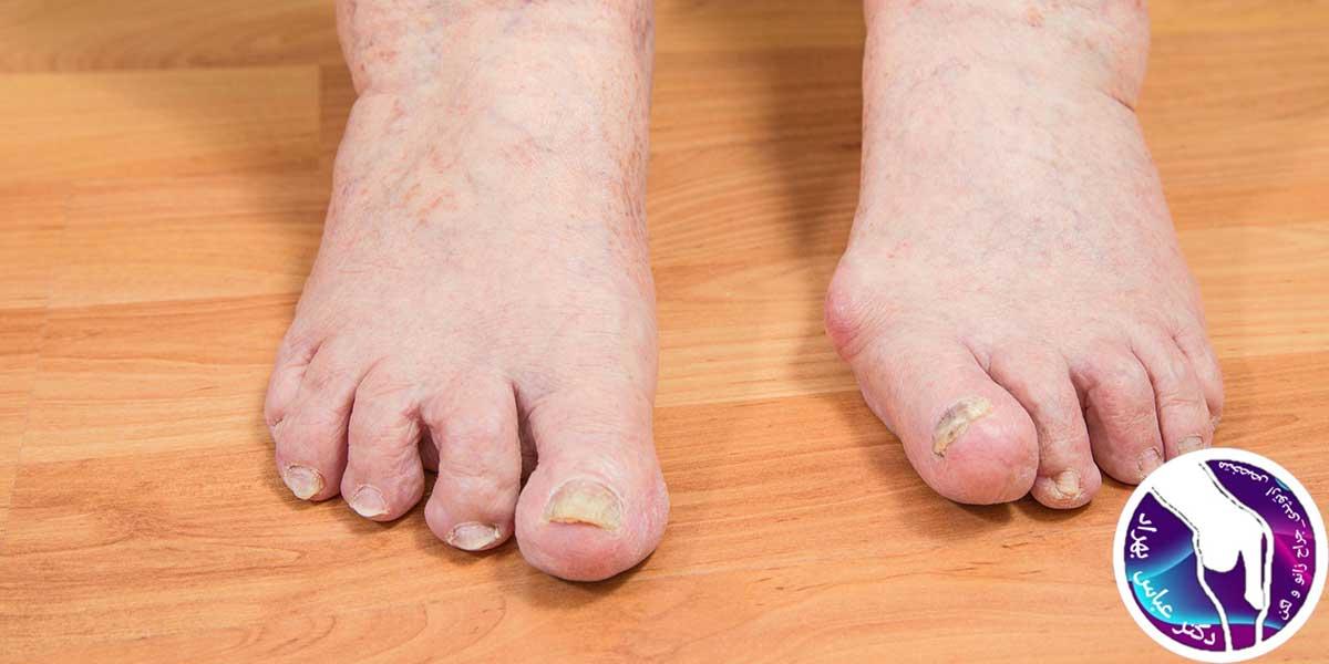 علائم، علل و درمان انگشت چکشی پا