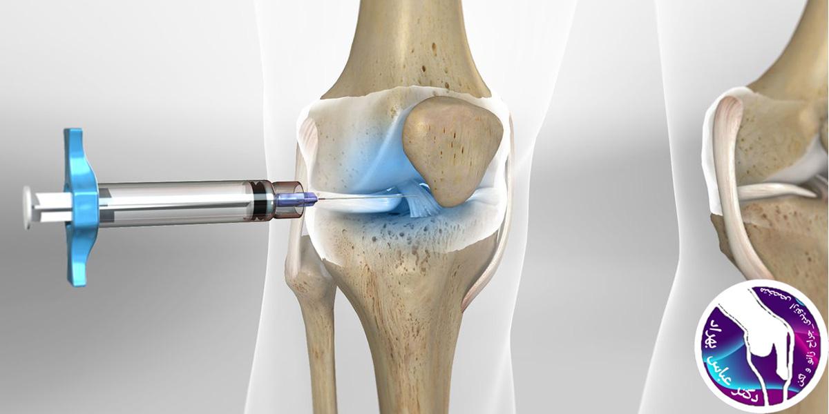تزریق ژل داخل مفصل زانو
