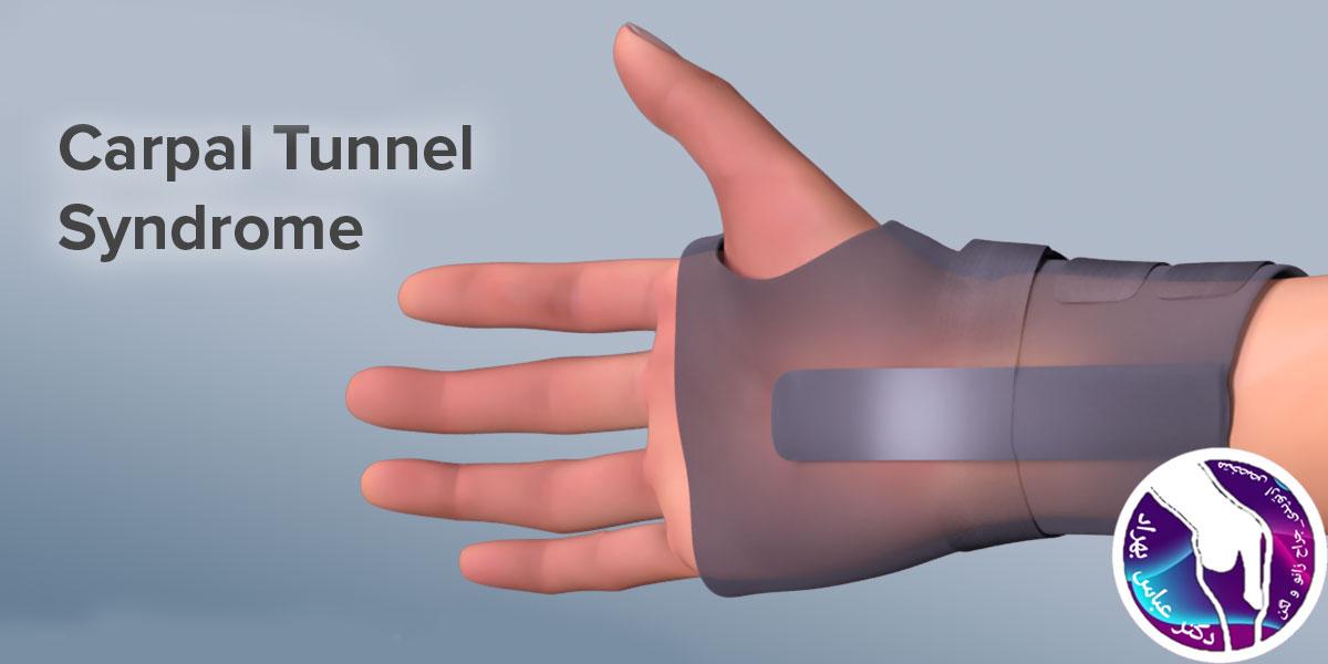 سندروم تونل کارپال